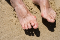 The Causes of Hammertoe